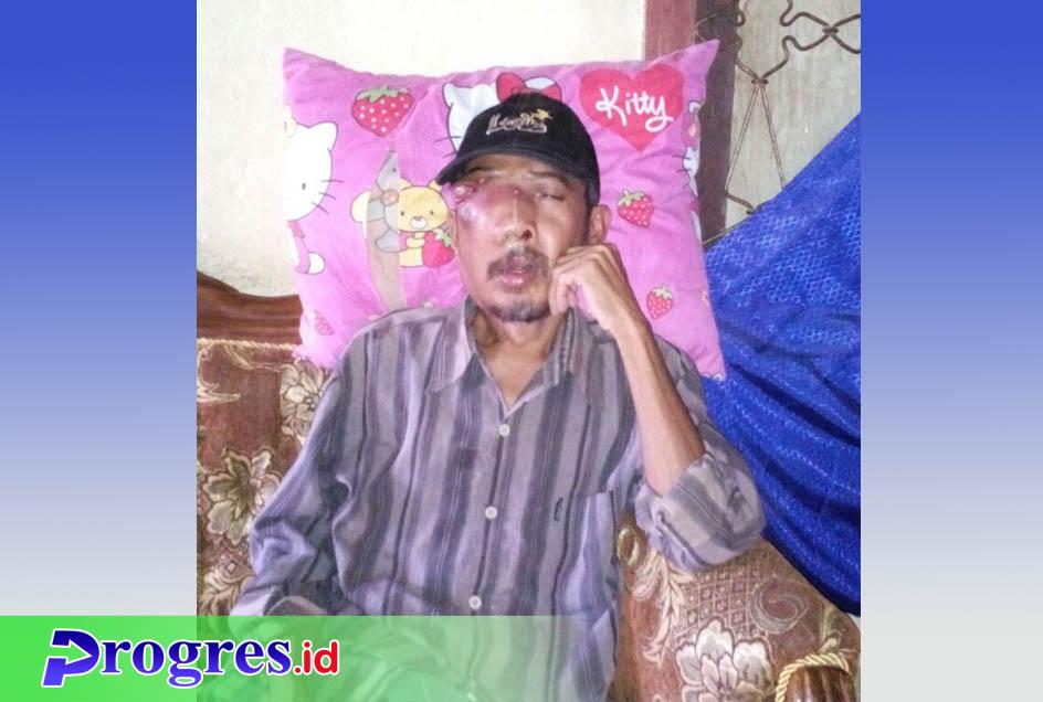 Edi Sucipto yang divonis menderita kanker mata membutuhkan bantuan dermawan | Foto: Hasan Basri/PROGRES.ID